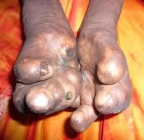 leprosy-facts_3