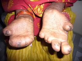 leprosy-facts_5
