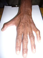 leprosy-facts_7