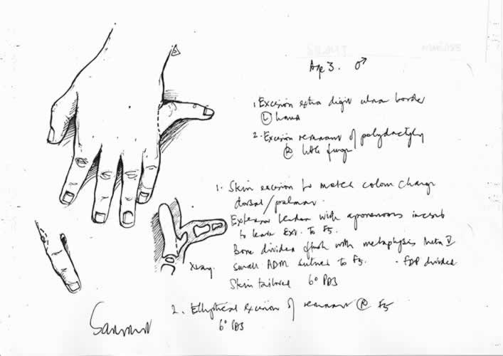 f5polydactyly_disc3x500