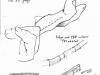 failed-swan-neck-correction-tenodesisx500