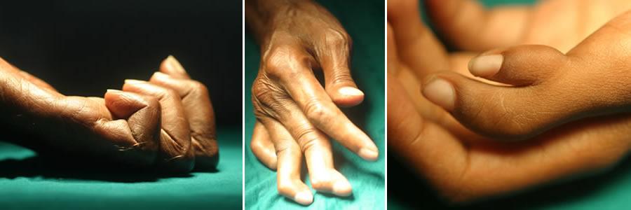 Working Hands - Slide 2